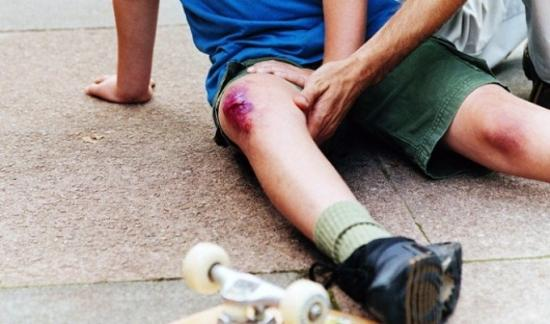 как лечить ушиб колена в домашних условиях