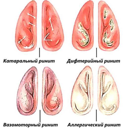 Народный метод лечения жидкости в легких