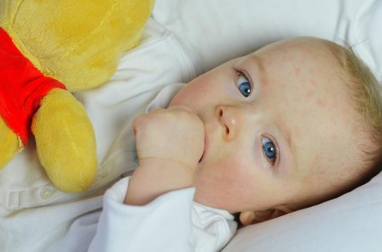 у ребенка мелкая сыпь на лице