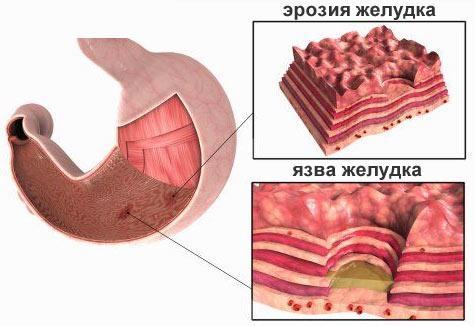 эхрозия желудка и двенадцатиперстной кишки