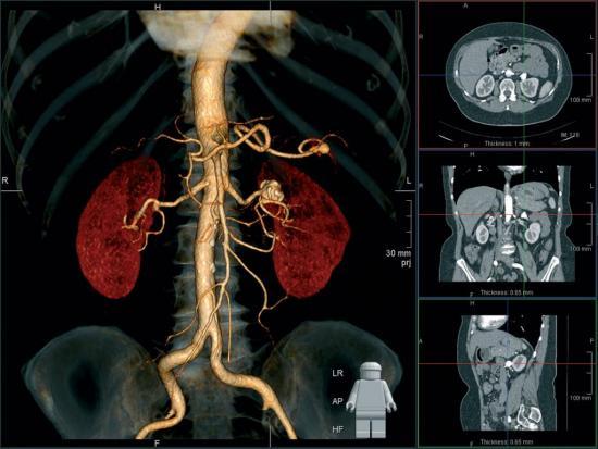 диагностика азболеваний почек