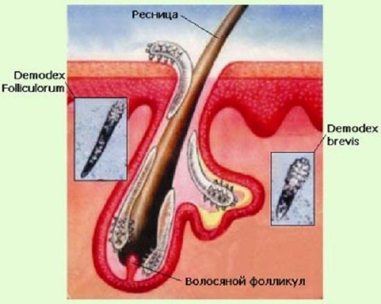 демодекс лечение