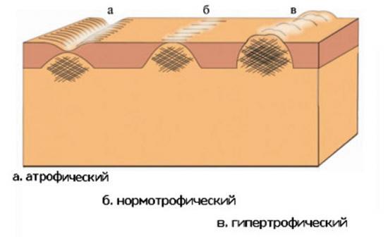 видышрамов