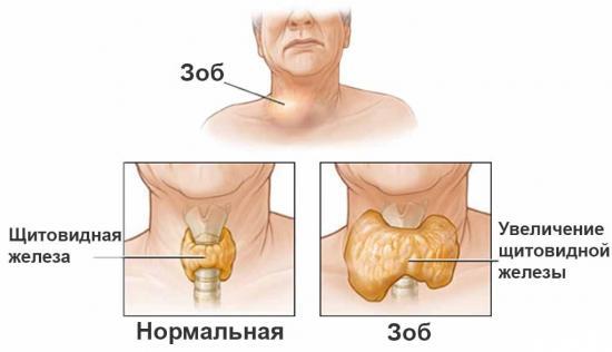 Щитовидка увеличенная