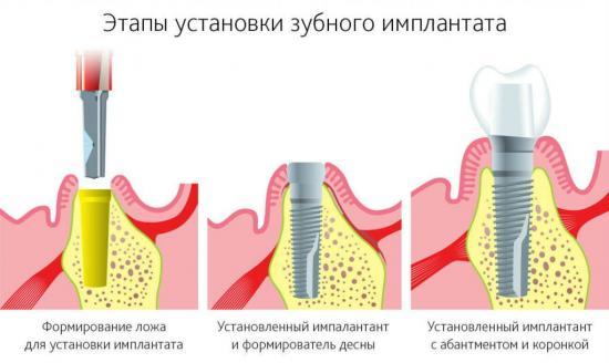имплантация зубов показания