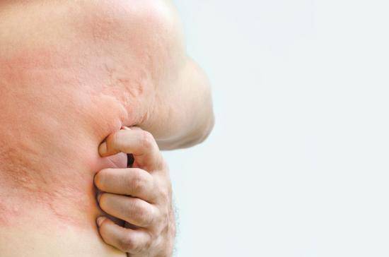 как проявляется крапивница у взрослых симптомы