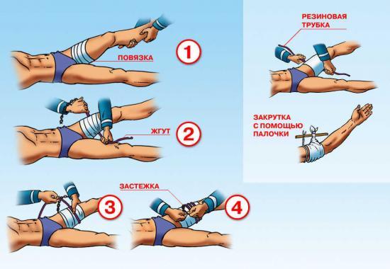как наложить жгут при наружном кровотечении