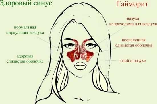 гайморит и синусит