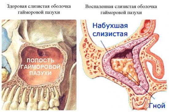 двухсторонний гайморит методы лечения