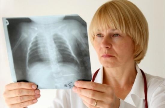 рентгеновкий снимок