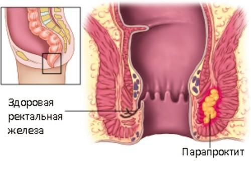 парапроктит у грудничков