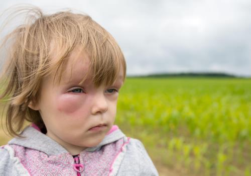 аллергия отеки