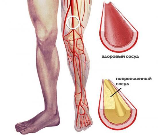 симптомы облитерирующего эндартериита