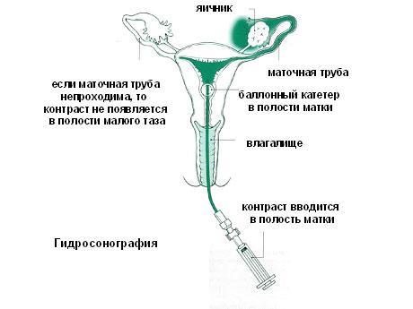 Беременность после ГСГ маточных труб