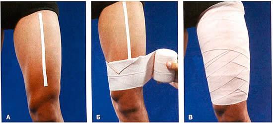 первая помощь при растяжении  мышц бедра