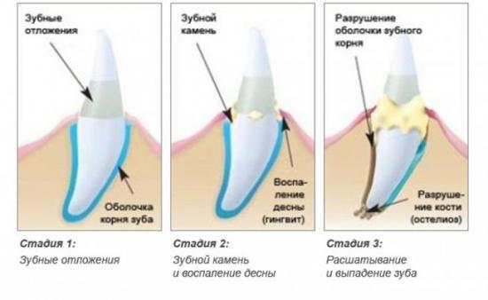 Зубной нале и зубной камень
