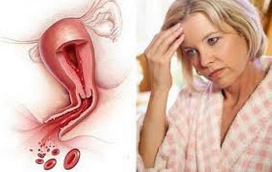 маточные кровотечения при климаксе