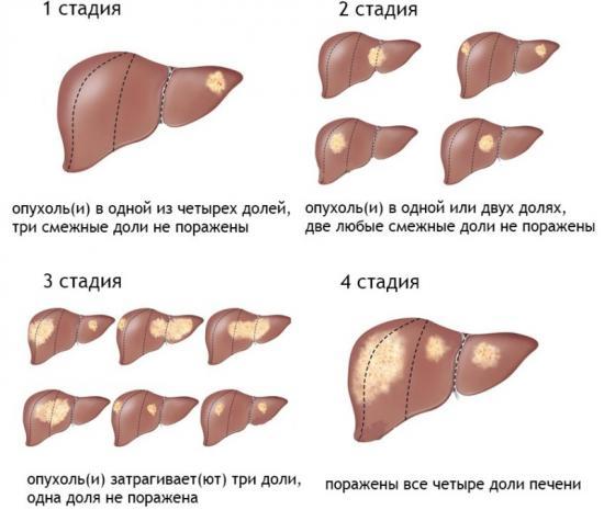 рак печени, стадии