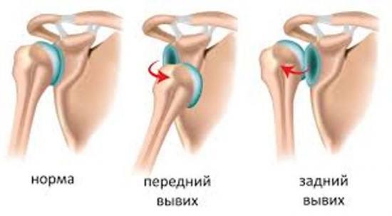 вывих плечевого сустава что делать