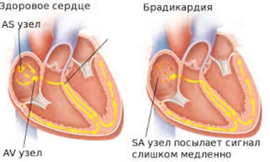 брадикардия и здоровое сердце