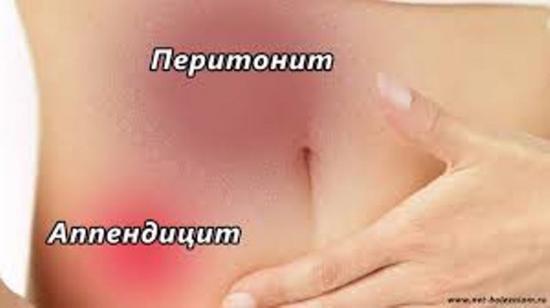 осложнения аппендицита