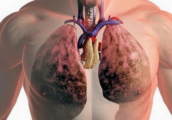 герпетическая пневмония