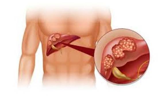 герпетический гепатит