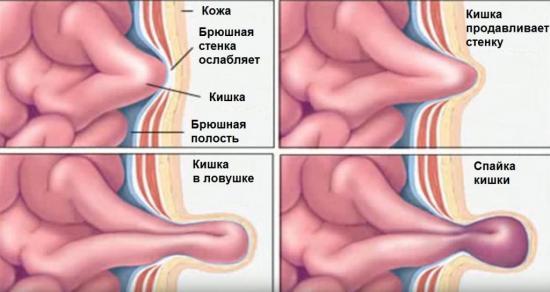 Уплотнение в паху у женщин справа 2