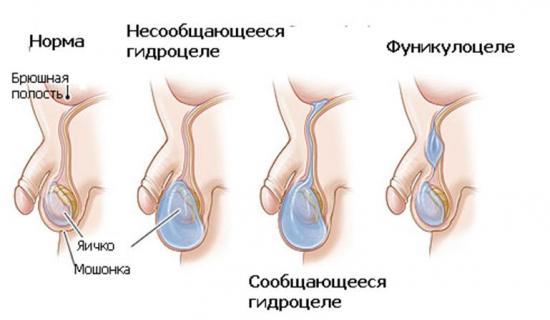 гидроцеле