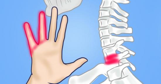 Онемение рук во время сна, симптом чего