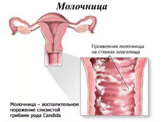 Лечение молочницы за один день