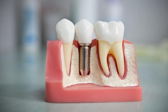 Сколько стоит удалить зуб в Москве