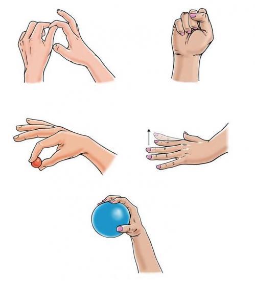 упражнения для воссановления руки после перелома