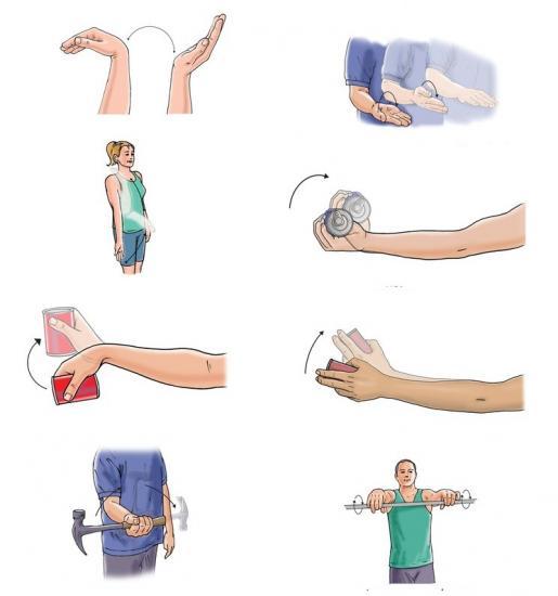 упражнения для воссановления руки после снятия гипса