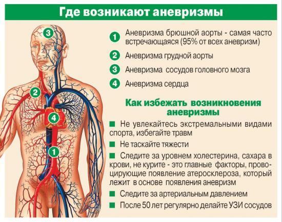 профилактика аневризмы