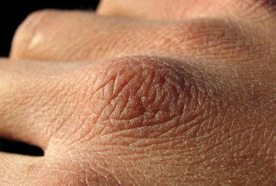 сухая кожа на руках трескается