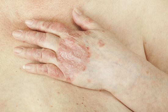 симптомы васкулита