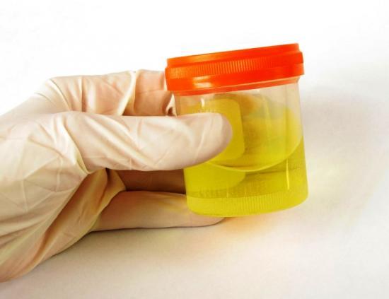 повышенный белок в моче
