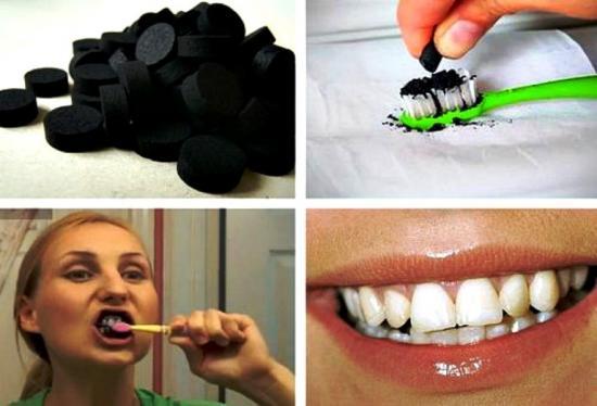 удалкемк еналета и отбеливание зубов активированным углем