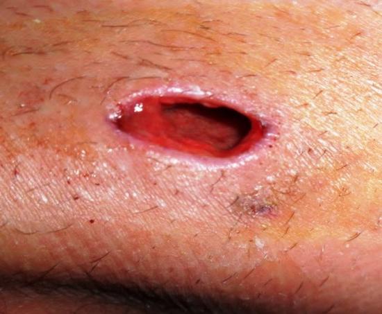 последствия от лечения фурункула