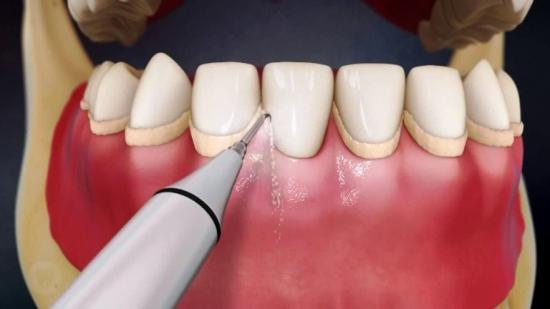 уделение зубного камня в стоматологическом кабинете