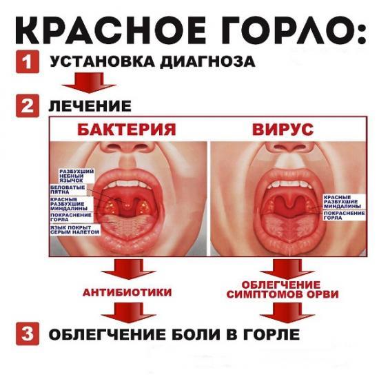 лечение гнойной ангины у ребенка