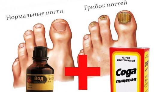 Лечение грибка на ногтях народными средствами