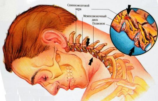 Причина головной боли в области затылка