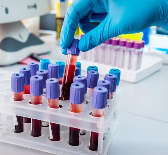 Анализ крови для диагностики фотодерматита