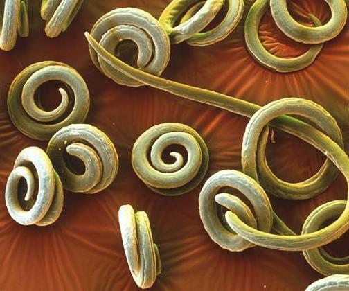продукты от паразитов в организме
