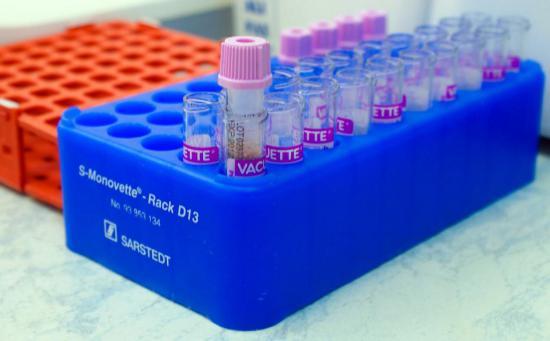Лечить дисбактериоз нужно после сдачи анализов