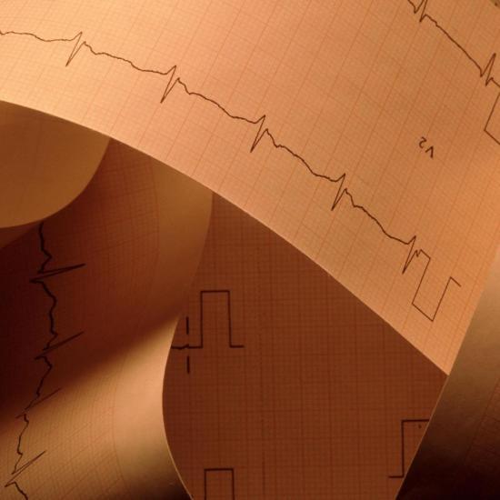 При ревматизме больше всего страдает сердце