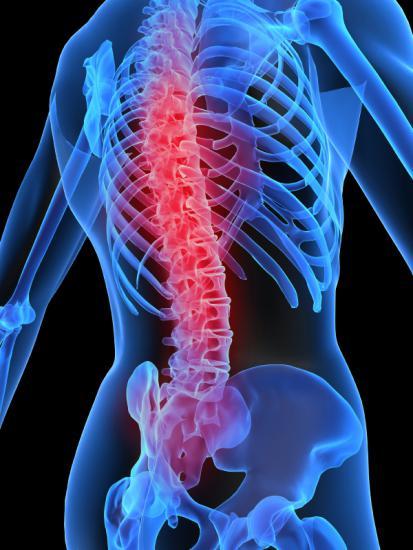 Алкаптонурия может негативно сказаться на состоянии позвоночника