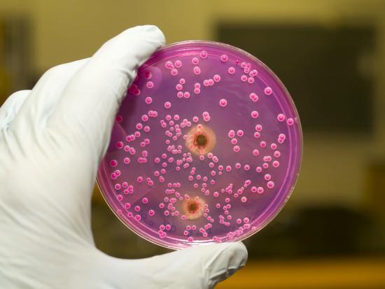 Состав микрофлоры зависит от участка взятия исследуемого материала